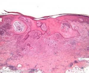 yeast infections in men